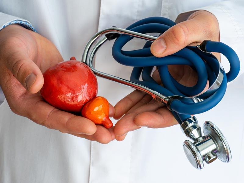 Exame PSA para Câncer de Próstata